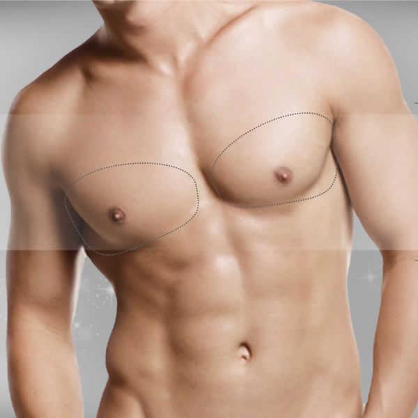 Implante pectoral (hombre)