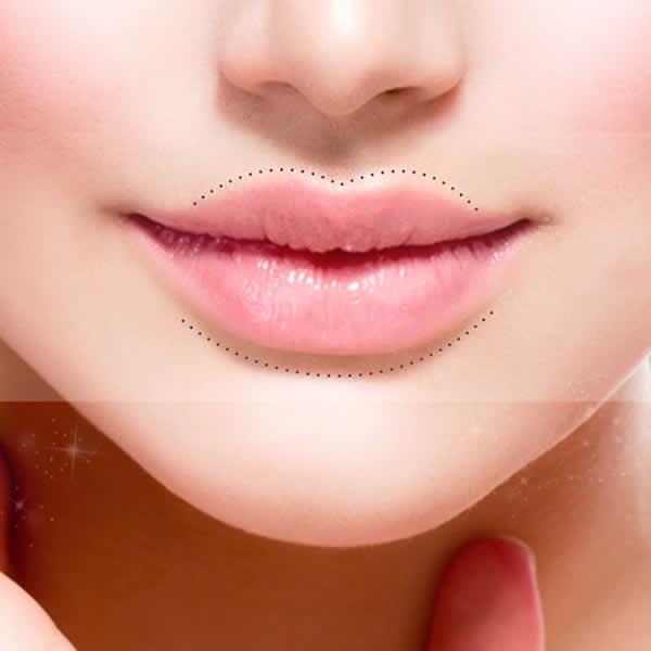 Aumento de volumen de labios