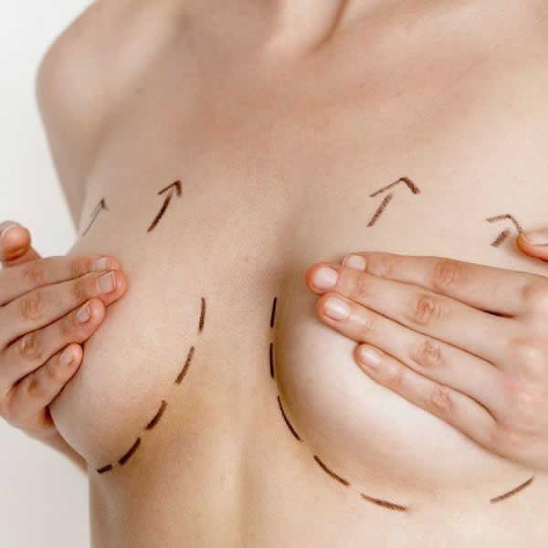 Levantamiento mamario sin implante (pexia)