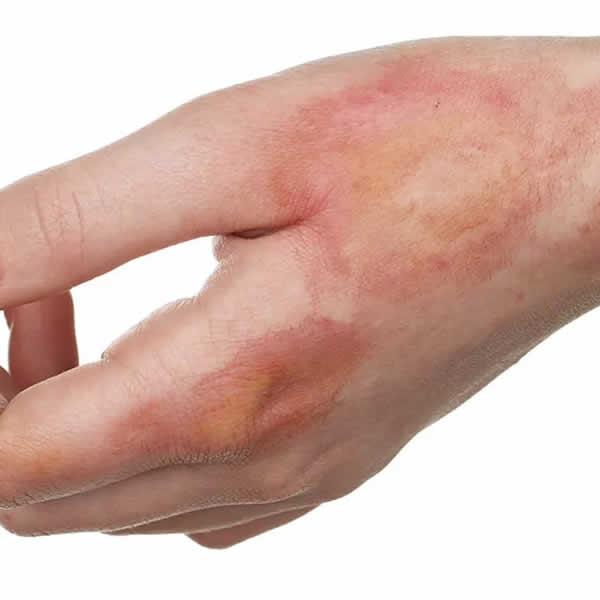 Quemaduras, secuelas de quemaduras