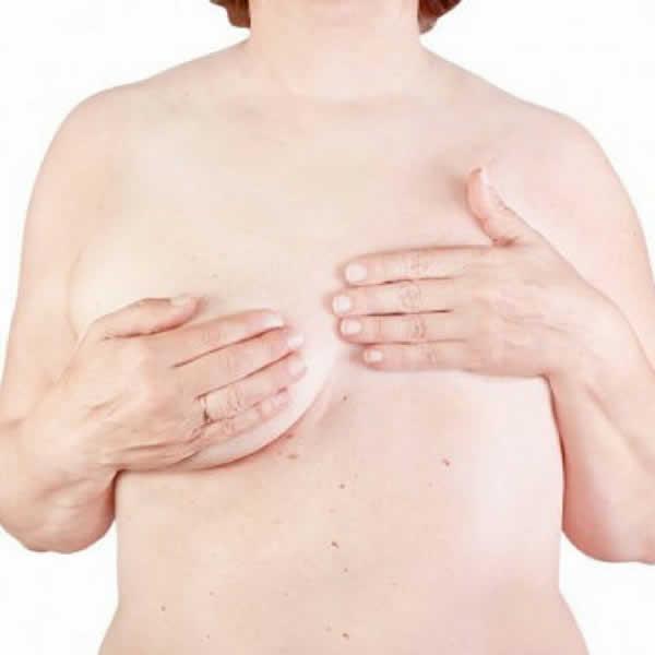 Reconstrucción de mama post cáncer